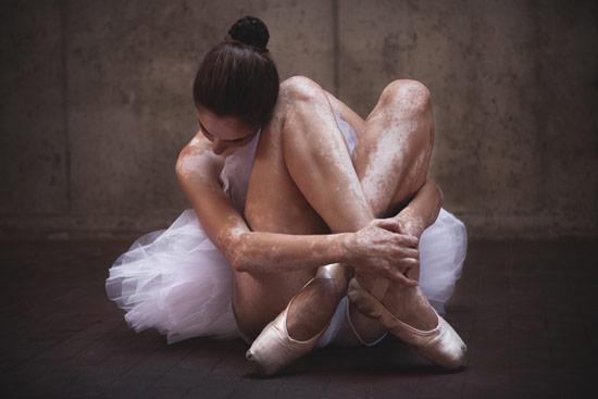 Leonardo-Fabris_Dance_of_Vitiligo_01.jpg