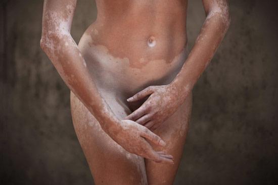 Leonardo-Fabris_Dance_of_Vitiligo_02.jpg