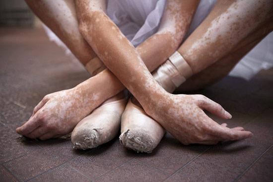 Leonardo-Fabris_Dance_of_Vitiligo_03.jpg