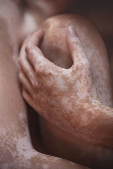 Leonardo-Fabris_Dance_of_Vitiligo_04.jpg