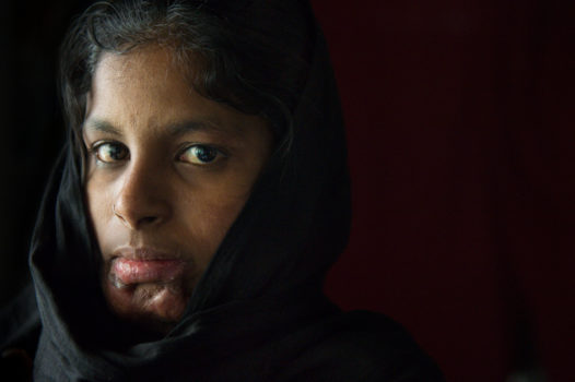"""""""I never thought I would see 2014, I am so happy I have another chance."""" 17 year-old Deepa's marriage began by being abducted and raped and ended in a hospital bed after she was set alight """"accidentally"""" by her husband. Her mother-in-law had doused her in kerosene during an argument about dowry."""