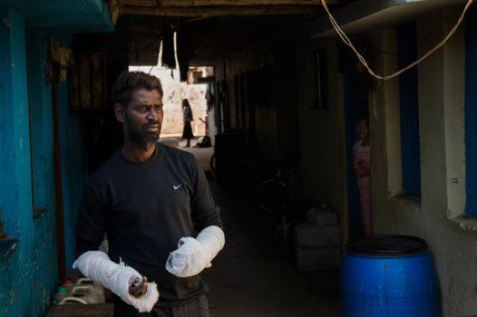According to Gondo Raj, 35, he severely burned his hands while trying to save his wife Soya, mother of three, after she lit herself on fire. Soya's family accuses Gondo of murdering her.